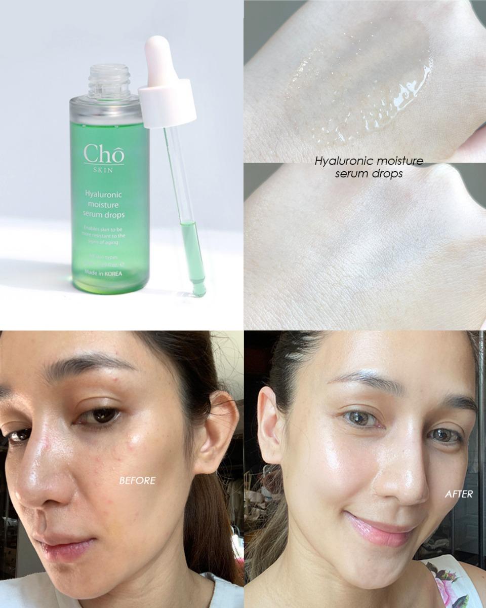 Cho Skin Hyaluronic moisture serum drops